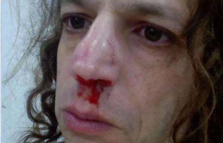 פצצה לפנים: מי תקף את אמיר חצרוני?